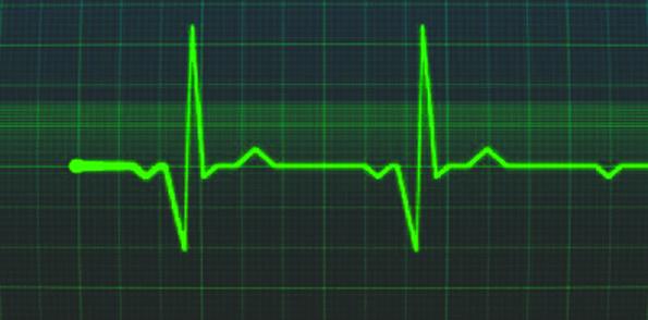 esteira com monitor cardiaco Esteira Batimentos Cardíacos