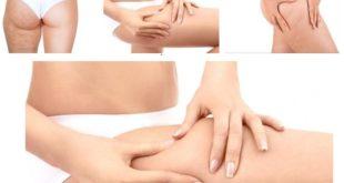 Esteira Celulite
